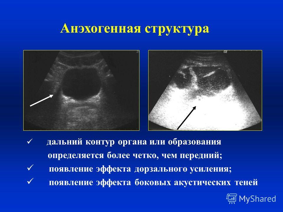 дальний контур органа или образования определяется более четко, чем передний; появление эффекта дорзального усиления; появление эффекта боковых акустических теней Анэхогенная структура