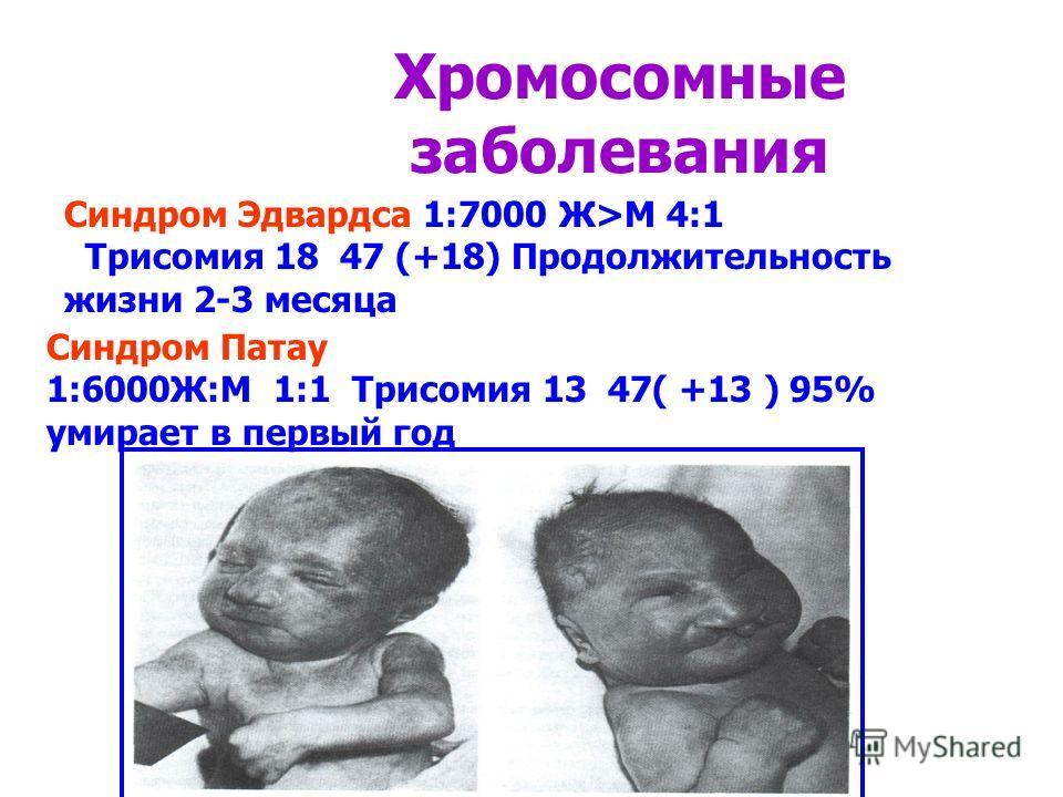 Хромосомные заболевания Синдром Эдвардса 1:7000 Ж>М 4:1 Трисомия 18 47 (+18) Продолжительность жизни 2-3 месяца Синдром Патау 1:6000Ж:М 1:1 Трисомия 13 47( +13 ) 95% умирает в первый год