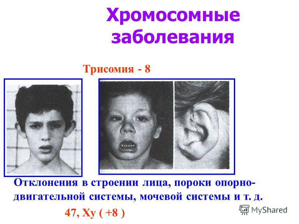 Хромосомные заболевания Трисомия - 8 Отклонения в строении лица, пороки опорно- двигательной системы, мочевой системы и т. д. 47, Ху ( +8 )