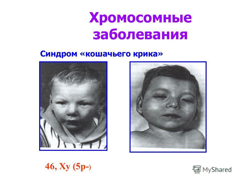 Хромосомные заболевания 46, Ху (5р- ) Синдром «кошачьего крика»