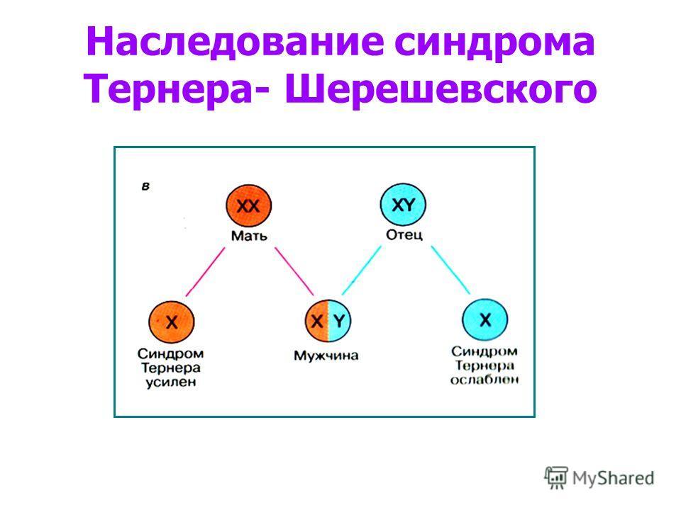 Наследование синдрома Тернера- Шерешевского