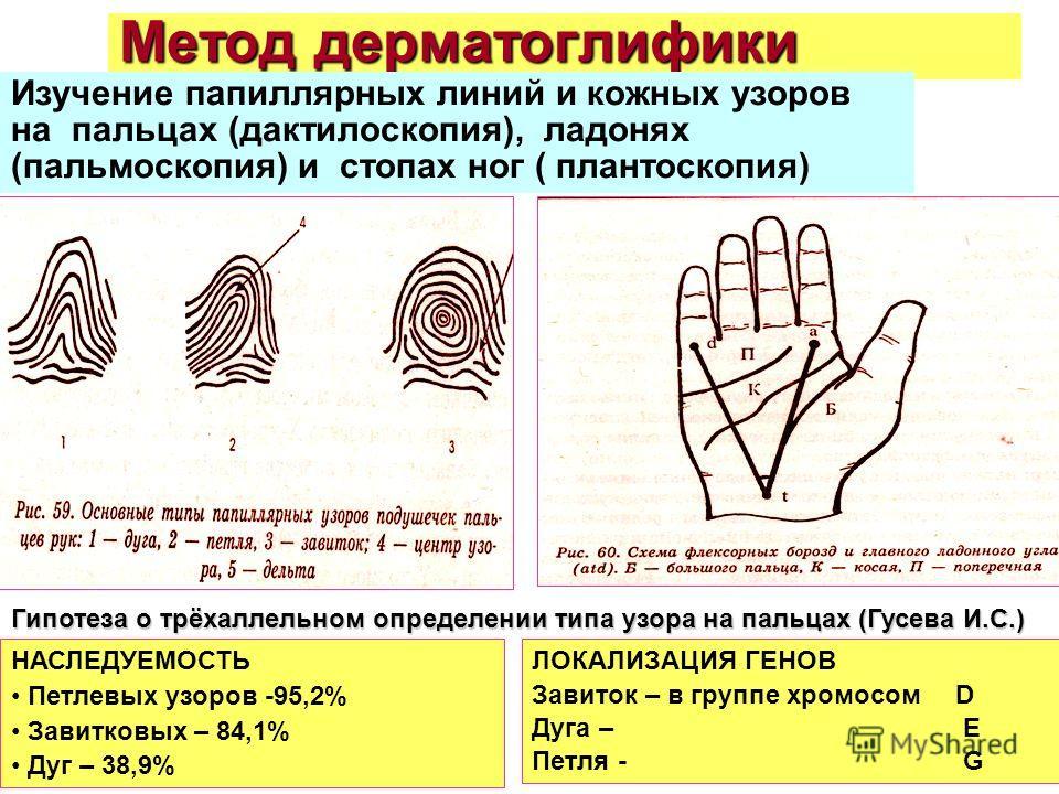 Метод дерматоглифики Изучение папиллярных линий и кожных узоров на пальцах (дактилоскопия), ладонях (пальмоскопия) и стопах ног ( плантоскопия) Гипотеза о трёхаллельном определении типа узора на пальцах (Гусева И.С.) НАСЛЕДУЕМОСТЬ Петлевых узоров -95