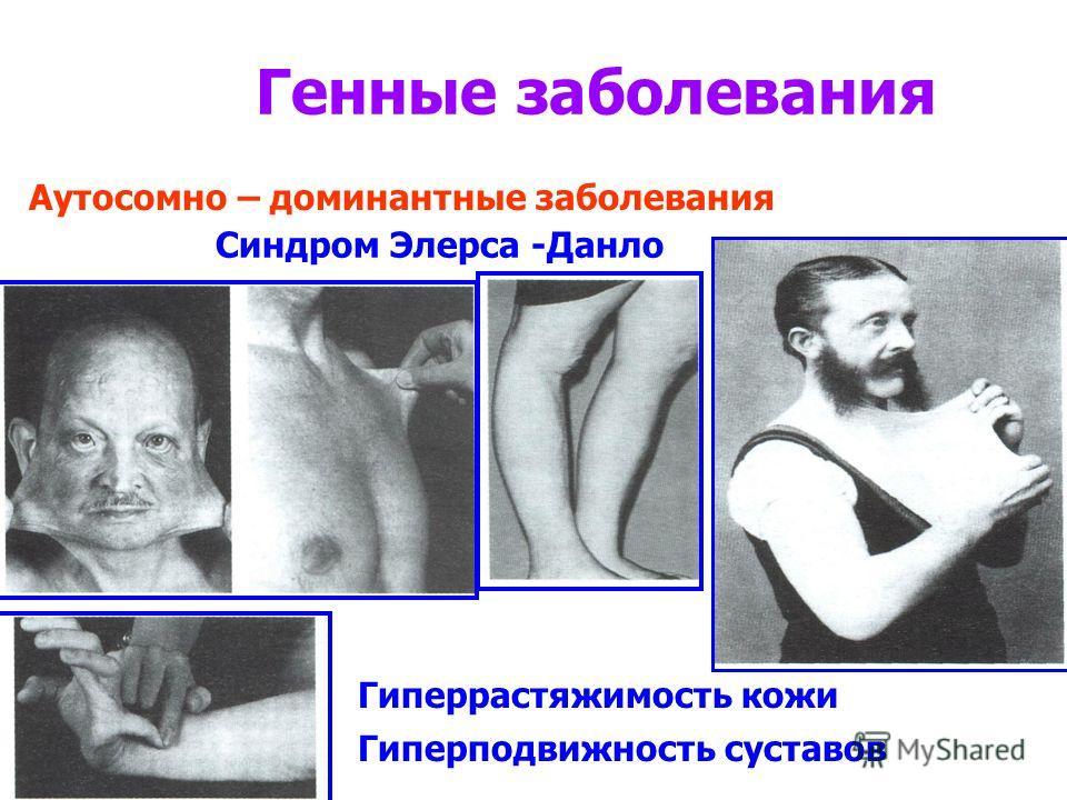 Генные заболевания Синдром Элерса -Данло Аутосомно – доминантные заболевания Гиперрастяжимость кожи Гиперподвижность суставов