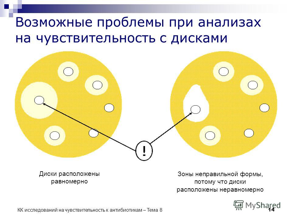 КК исследований на чувствительность к антибиотикам – Тема 8 14 Возможные проблемы при анализах на чувствительность с дисками Диски расположены равномерно Зоны неправильной формы, потому что диски расположены неравномерно