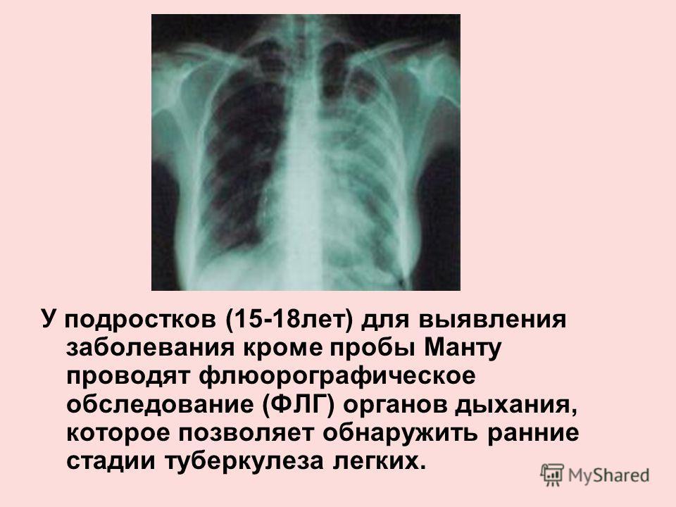 У подростков (15-18лет) для выявления заболевания кроме пробы Манту проводят флюорографическое обследование (ФЛГ) органов дыхания, которое позволяет обнаружить ранние стадии туберкулеза легких.