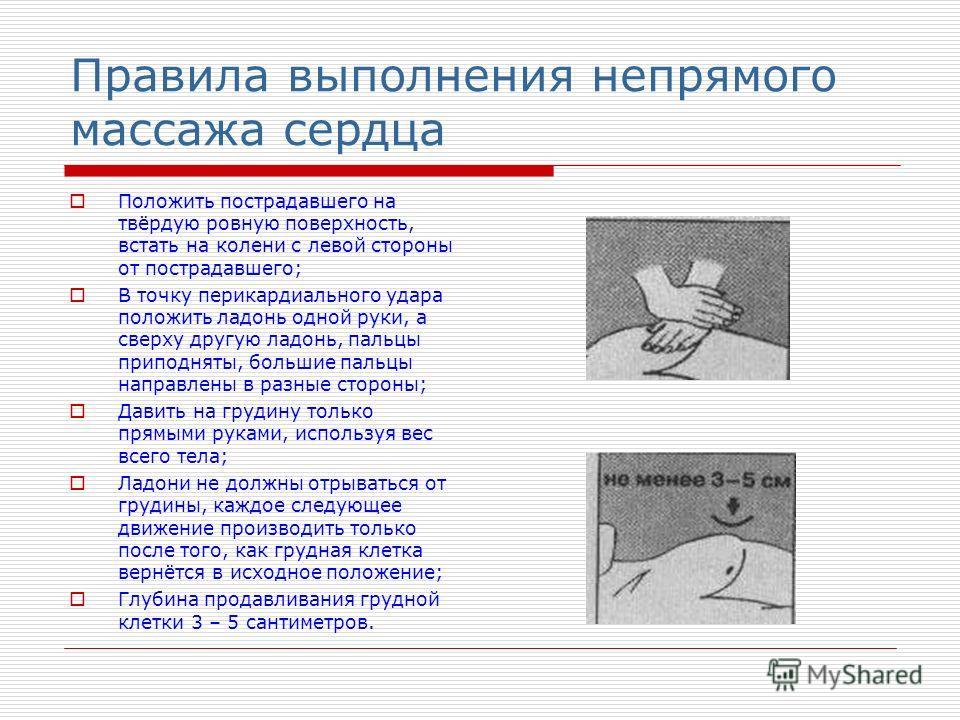 Техника выполнения СЛР а- Нижнее положение В – Верхнее положение С – Амплитуда 3 – 5см Д – Тазобедренный сустав