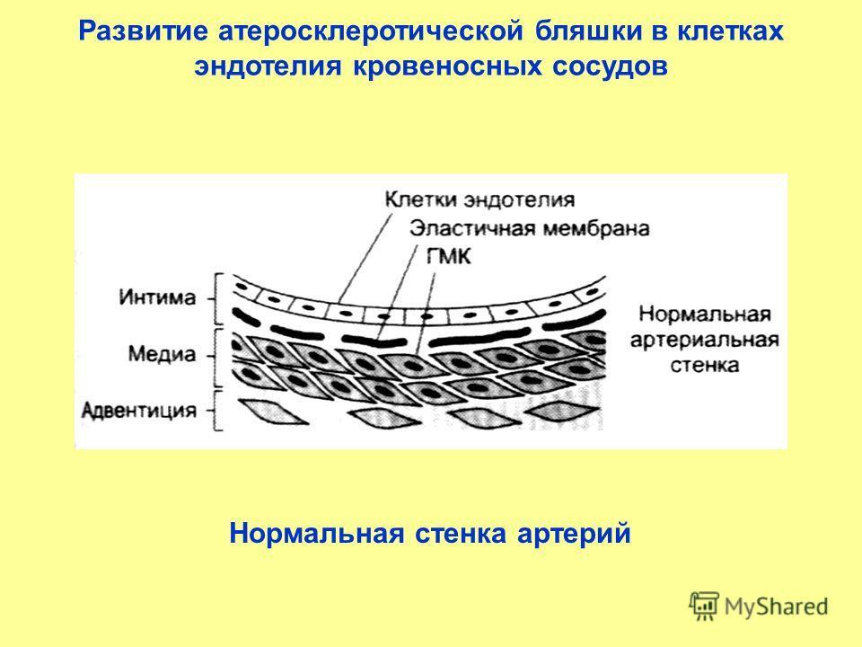 Развитие атеросклеротической бляшки в клетках эндотелия кровеносных сосудов Нормальная стенка артерий