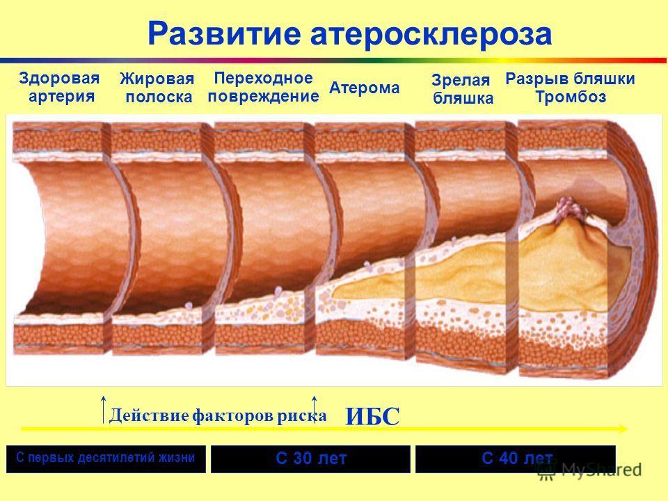 Развитие атеросклероза Здоровая артерия Жировая полоска Переходное повреждение Атерома Зрелая бляшка Разрыв бляшки Тромбоз С первых десятилетий жизни С 30 летС 40 лет ИБС Действие факторов риска