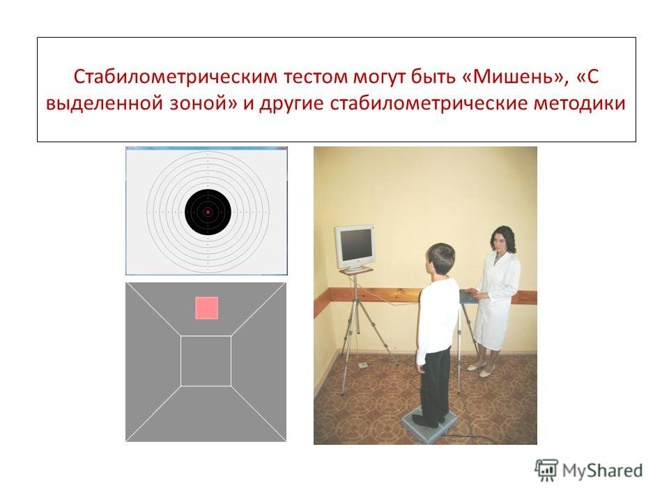 Стабилометрическим тестом могут быть «Мишень», «С выделенной зоной» и другие стабилометрические методики