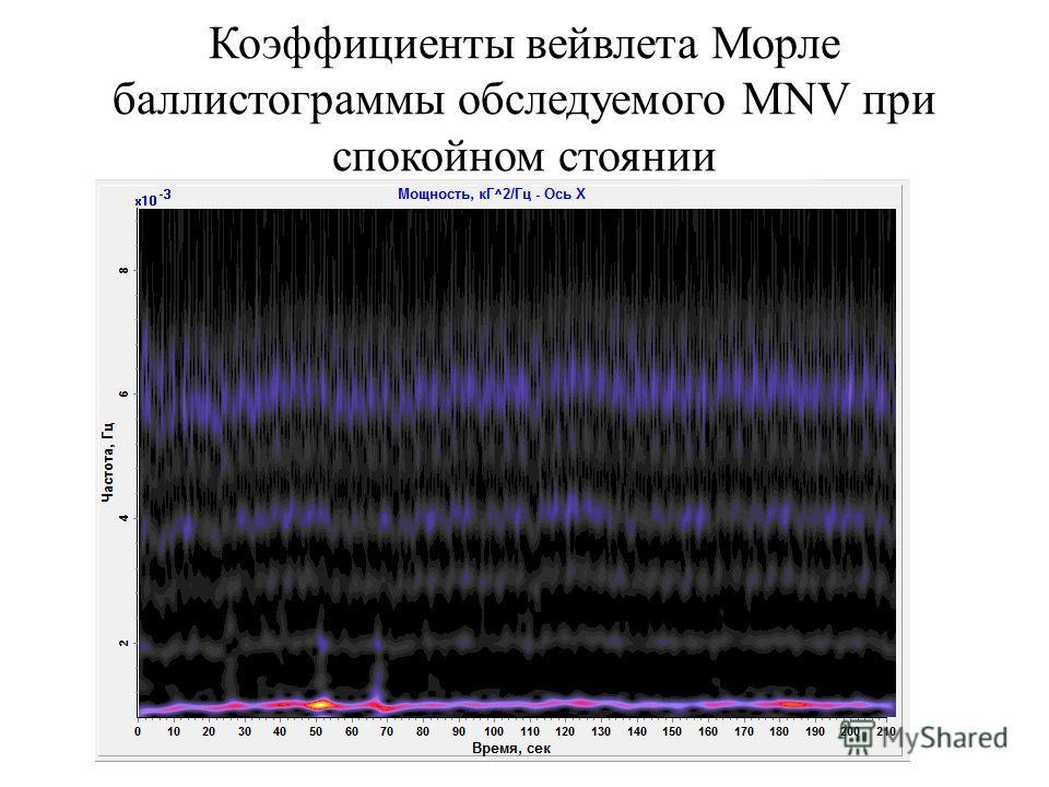 Коэффициенты вейвлета Морле баллистограммы обследуемого MNV при спокойном стоянии