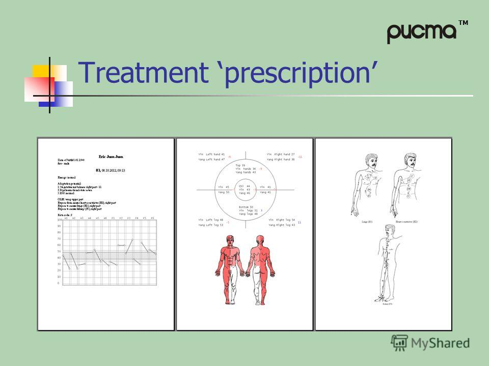 TM Treatment prescription