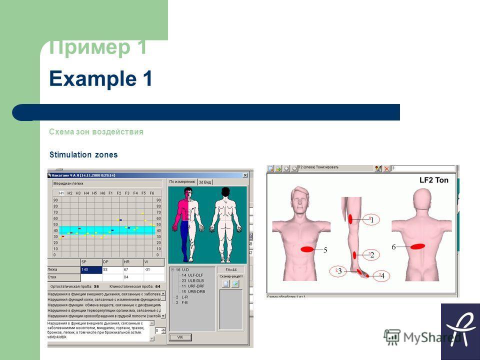 Пример 1 Example 1 Схема зон воздействия Stimulation zones