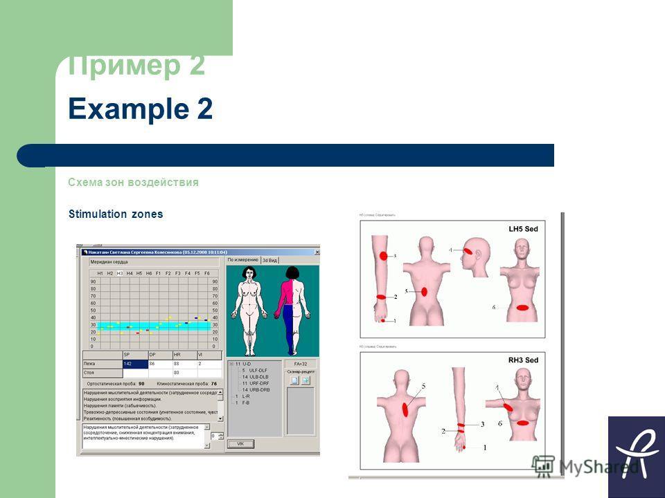 Пример 2 Example 2 Схема зон воздействия Stimulation zones