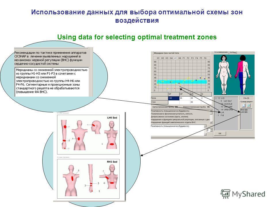 Использование данных для выбора оптимальной схемы зон воздействия Using data for selecting optimal treatment zones