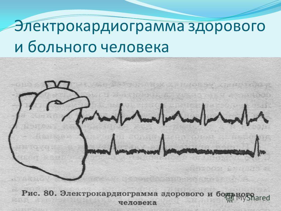 Электрокардиограмма здорового и больного человека