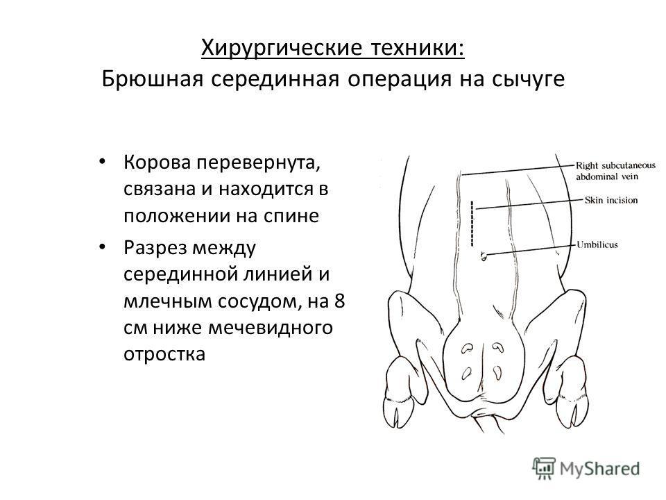 Хирургические техники: Брюшная серединная операция на сычуге Корова перевернута, связана и находится в положении на спине Разрез между серединной линией и млечным сосудом, на 8 см ниже мечевидного отростка