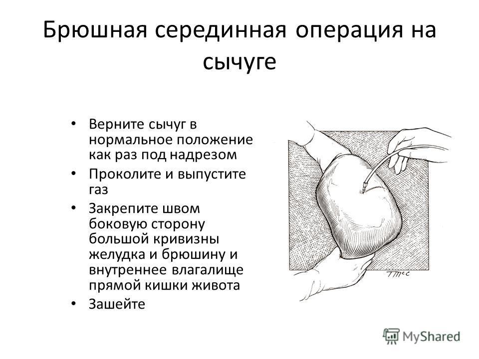Брюшная серединная операция на сычуге Верните сычуг в нормальное положение как раз под надрезом Проколите и выпустите газ Закрепите швом боковую сторону большой кривизны желудка и брюшину и внутреннее влагалище прямой кишки живота Зашейте