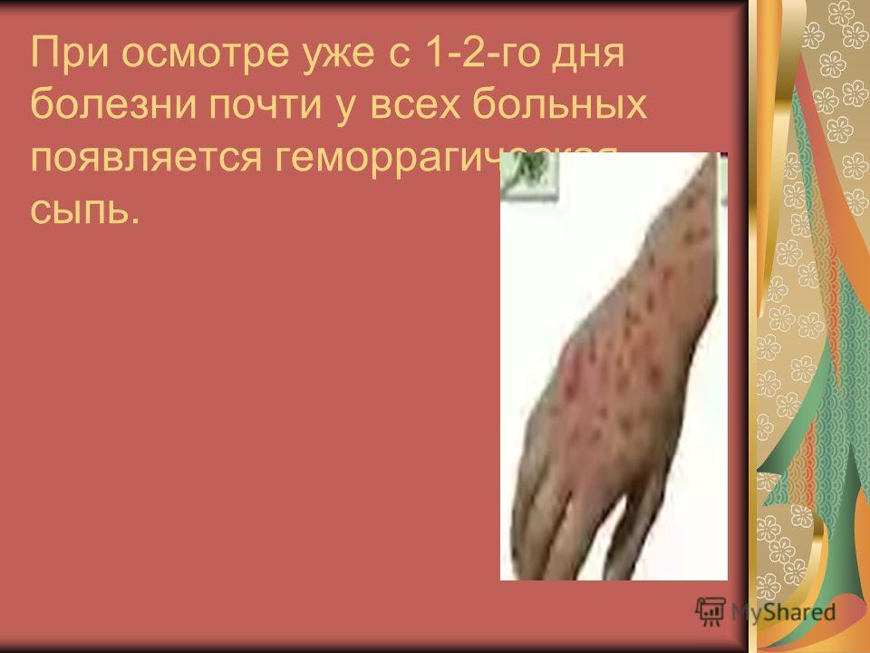 При осмотре уже с 1-2-го дня болезни почти у всех больных появляется геморрагическая сыпь.