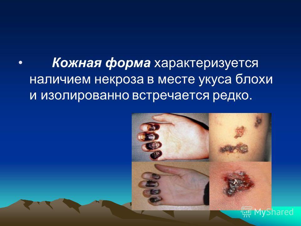 Кожная форма характеризуется наличием некроза в месте укуса блохи и изолированно встречается редко.