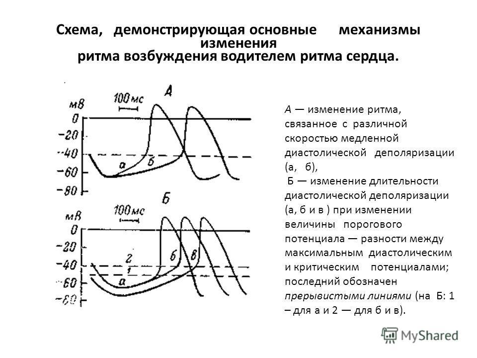Схема, демонстрирующая основные механизмы изменения ритма возбуждения водителем ритма сердца. А изменение ритма, связанное с различной скоростью медленной диастолической деполяризации (а, б), Б изменение длительности диастолической деполяризации (а,