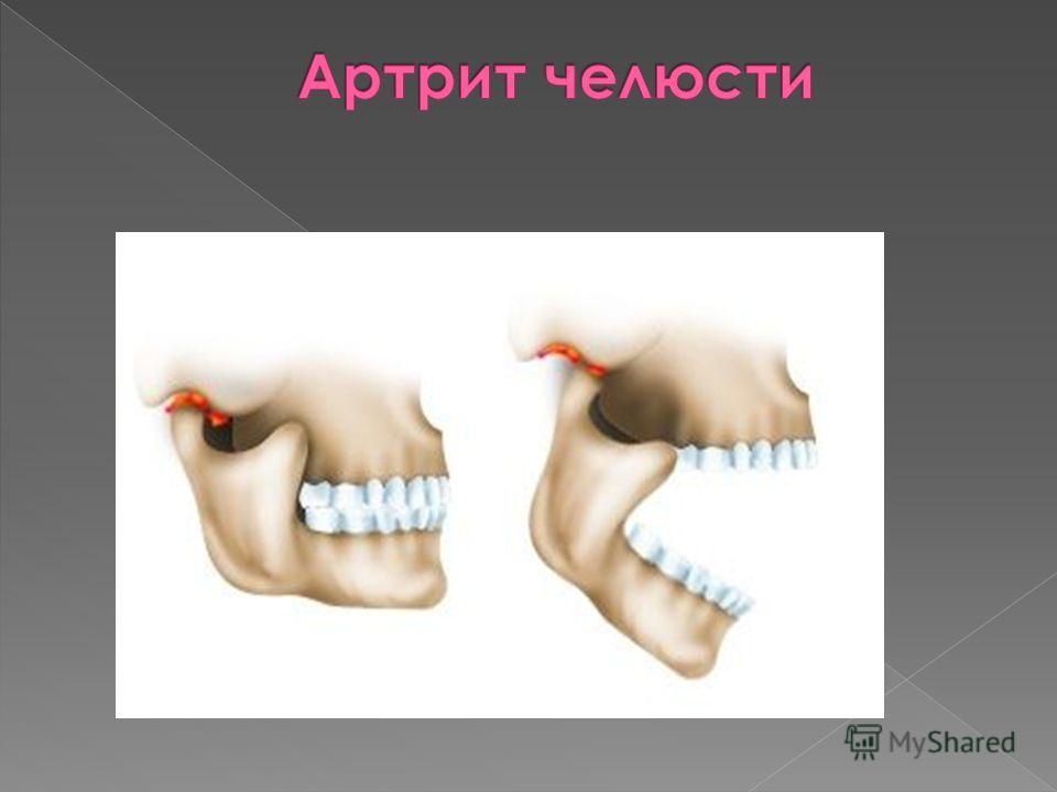 Функциональные суставные мышечные заболевания кремы мази боли суставах