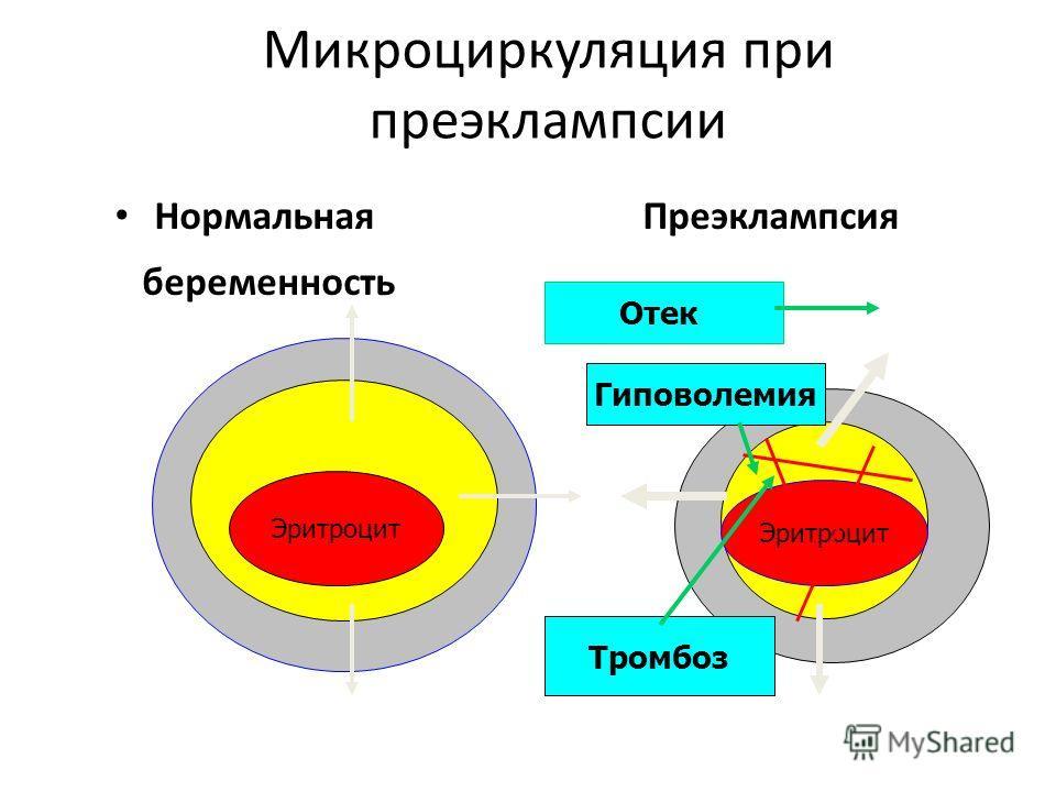 Микроциркуляция при преэклампсии Нормальная Преэклампсия беременность Эритроцит Отек Гиповолемия Тромбоз