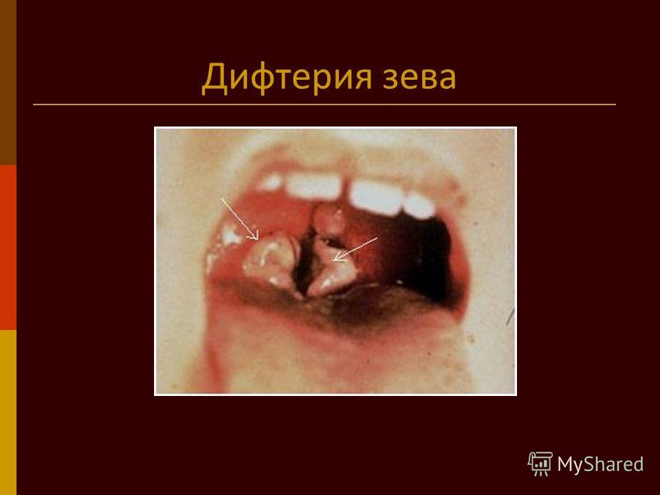 Дифтерия зева