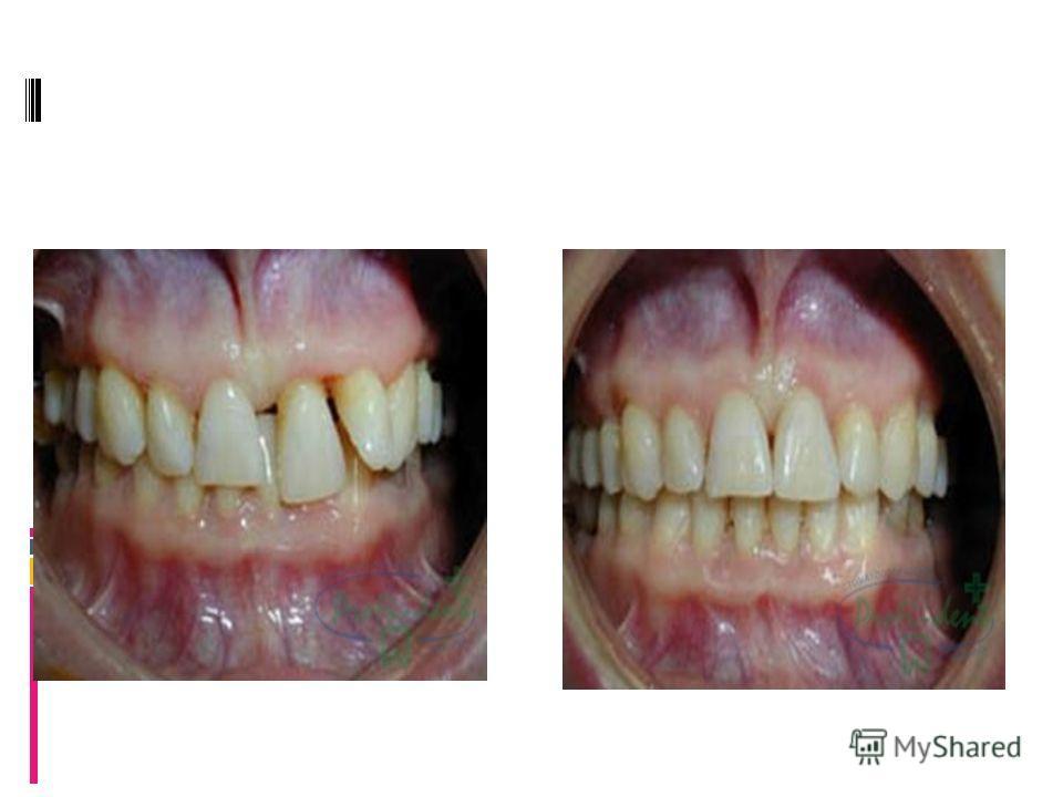 Деформация зубных рядов в результате резорбции костной ткани Жанна, 37 лет Диагноз: Деформация зубных рядов в результате резорбции костной ткани Лечение: без удаления постоянных зубов. Срок лечения: 10 месяцев Диагноз: Деформация зубных рядов в резул