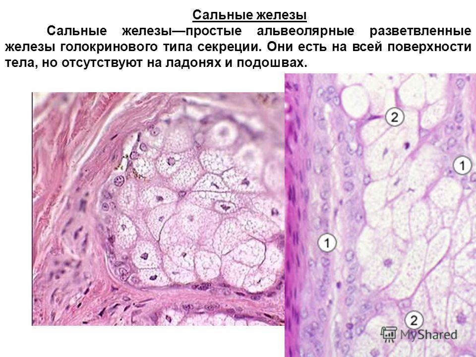 Сальные железы Сальные железыпростые альвеолярные разветвленные железы голокринового типа секреции. Они есть на всей поверхности тела, но отсутствуют на ладонях и подошвах.