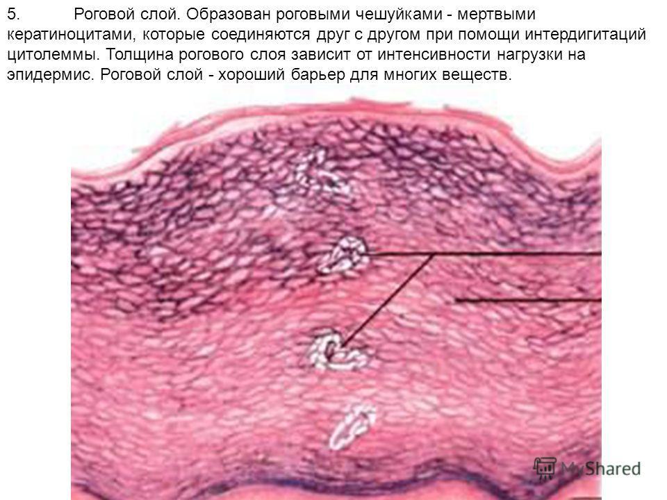 5.Роговой слой. Образован роговыми чешуйками - мертвыми кератиноцитами, которые соединяются друг с другом при помощи интердигитаций цитолеммы. Толщина рогового слоя зависит от интенсивности нагрузки на эпидермис. Роговой слой - хороший барьер для мно