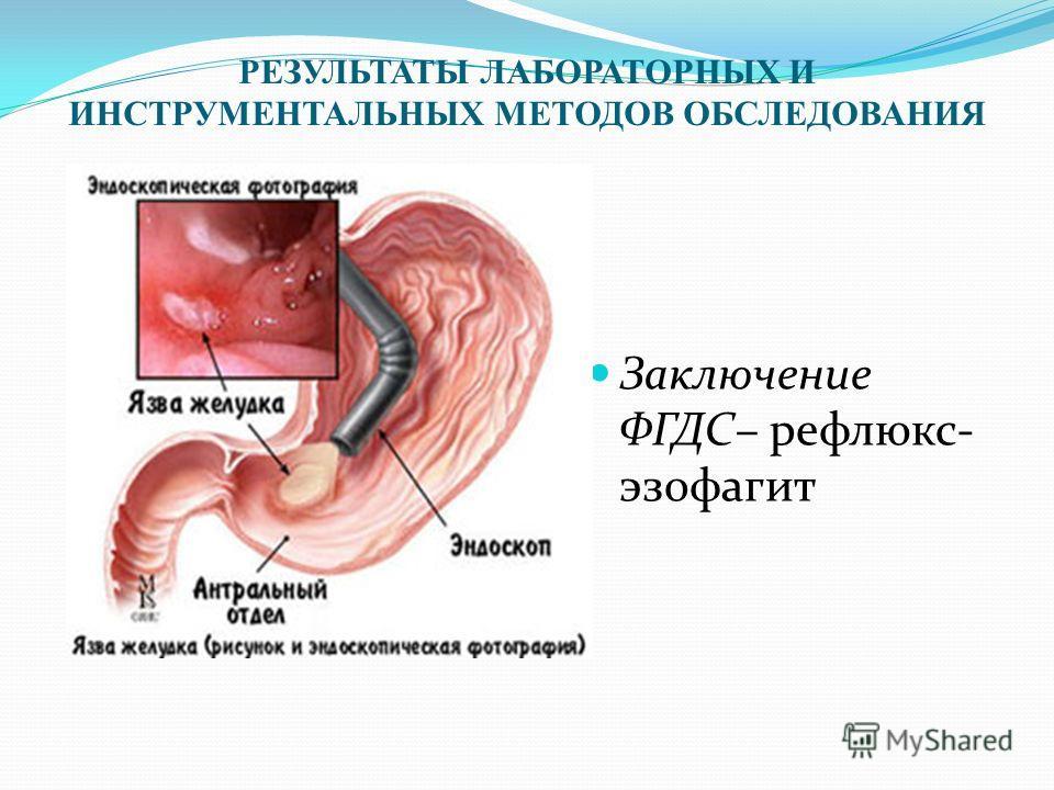 РЕЗУЛЬТАТЫ ЛАБОРАТОРНЫХ И ИНСТРУМЕНТАЛЬНЫХ МЕТОДОВ ОБСЛЕДОВАНИЯ Заключение ФГДС– рефлюкс- эзофагит