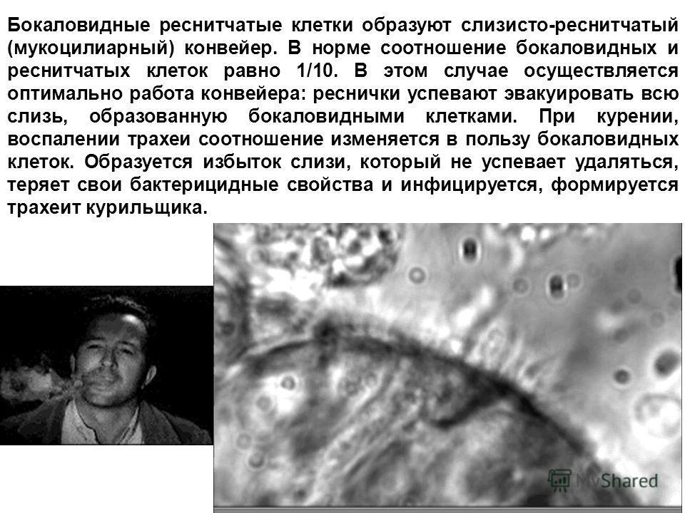 Бокаловидные реснитчатые клетки образуют слизисто-реснитчатый (мукоцилиарный) конвейер. В норме соотношение бокаловидных и реснитчатых клеток равно 1/10. В этом случае осуществляется оптимально работа конвейера: реснички успевают эвакуировать всю сли
