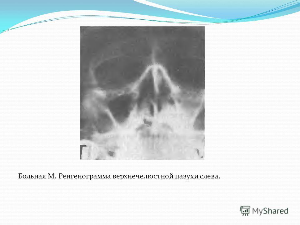 Больная М. Ренгенограмма верхнечелюстной пазухи слева.