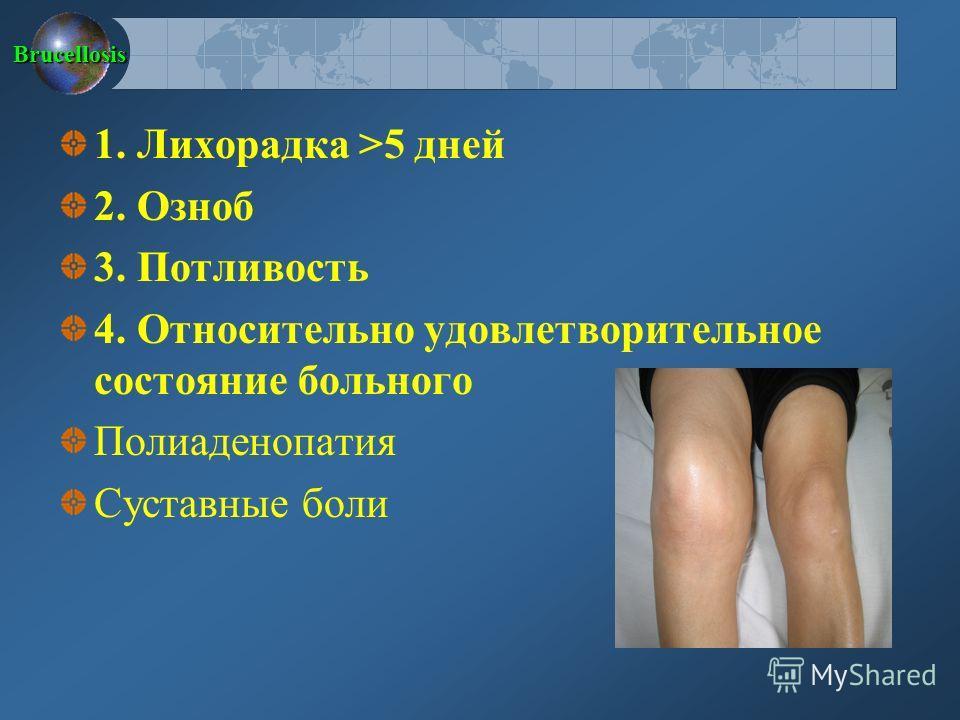 Brucellosis 1. Лихорадка >5 дней 2. Озноб 3. Потливость 4. Относительно удовлетворительное состояние больного Полиаденопатия Суставные боли