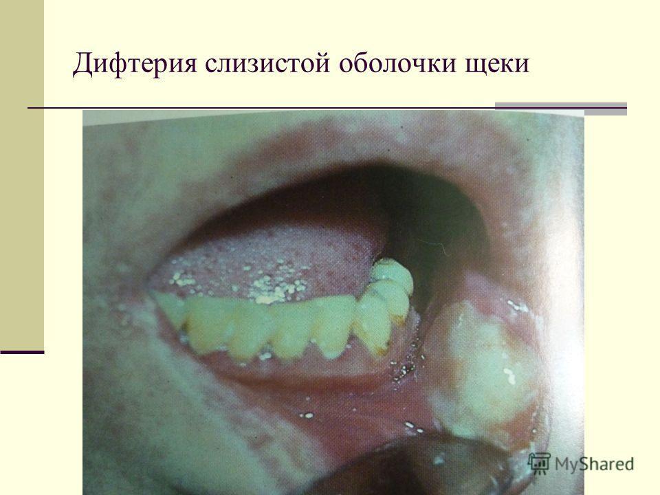 Дифтерия слизистой оболочки щеки