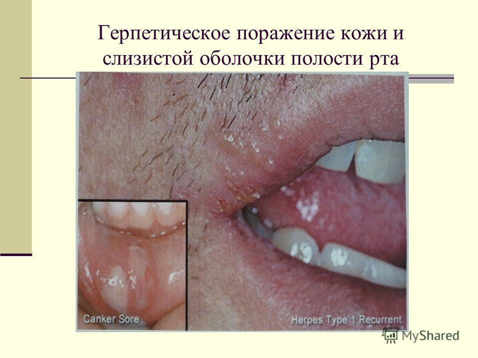 Герпетическое поражение кожи и слизистой оболочки полости рта