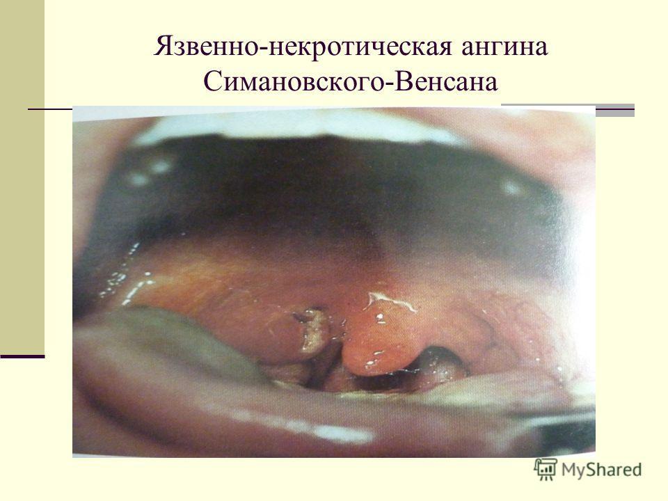 Язвенно-некротическая ангина Симановского-Венсана