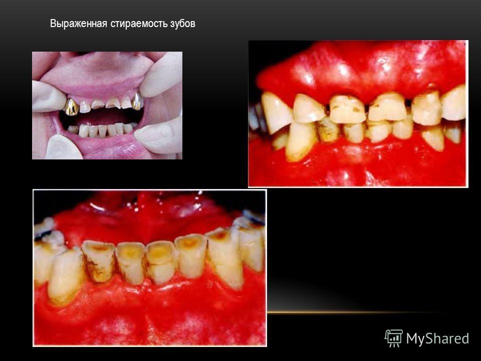 Выраженная стираемость зубов