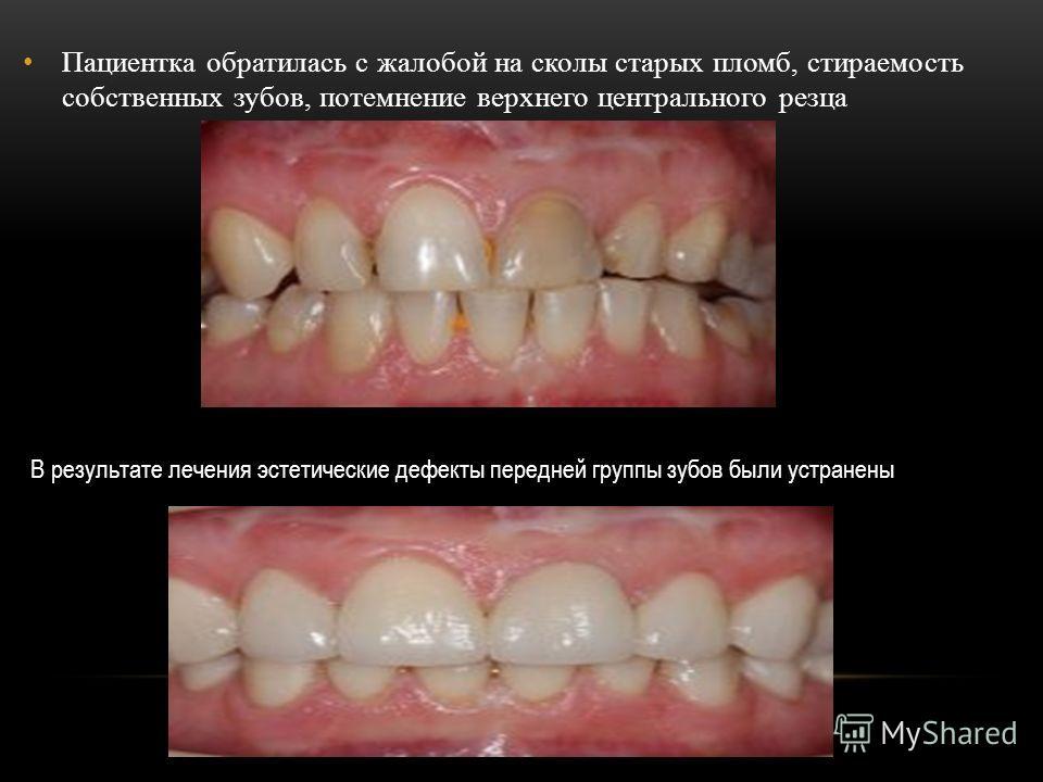 Пациентка обратилась с жалобой на сколы старых пломб, стираемость собственных зубов, потемнение верхнего центрального резца В результате лечения эстетические дефекты передней группы зубов были устранены