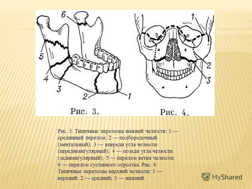 Рис. 3. Типичные переломы нижней челюсти: 1 срединный перелом; 2 подбородочный (ментальный); 3 впереди угла челюсти (переднеангулярный); 4 позади угла челюсти (заднеангулярный); 5 перелом ветви челюсти; 6 перелом суставного отростка. Рис. 4. Типичные