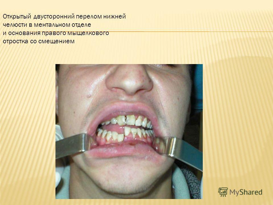 Открытый двусторонний перелом нижней челюсти в ментальном отделе и основания правого мыщелкового отростка со смещением