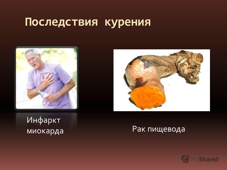 Последствия курения Инфаркт миокарда Рак пищевода