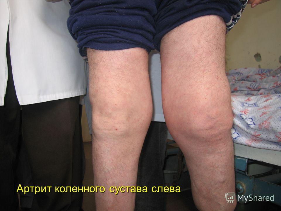 Артрит коленного сустава слева