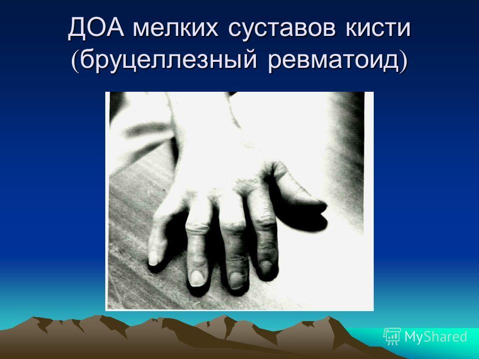 ДОА мелких суставов кисти бруцеллезный ревматоид ДОА мелких суставов кисти бруцеллезный ревматоид