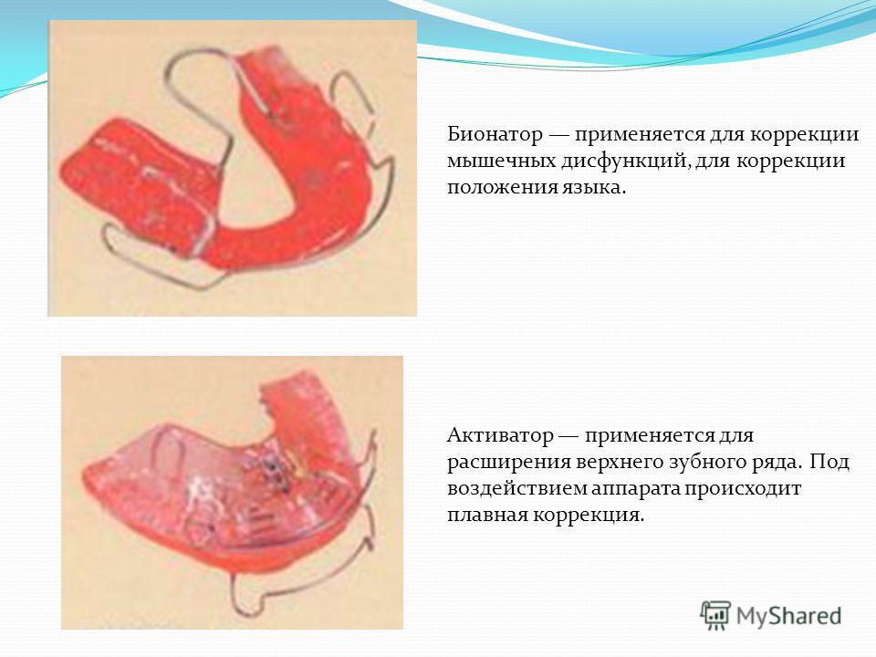 Перечислим основные виды аппаратов: Бионатор применяется для коррекции мышечных дисфункций, для коррекции положения языка. Активатор применяется для расширения верхнего зубного ряда. Под воздействием аппарата происходит плавная коррекция.