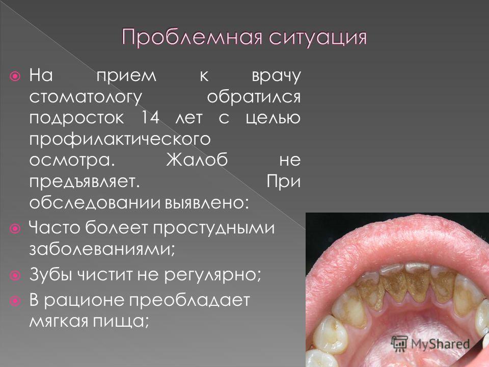 На прием к врачу стоматологу обратился подросток 14 лет с целью профилактического осмотра. Жалоб не предъявляет. При обследовании выявлено: Часто болеет простудными заболеваниями; Зубы чистит не регулярно; В рационе преобладает мягкая пища;
