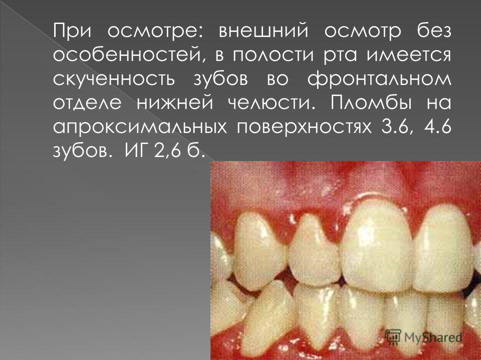 При осмотре: внешний осмотр без особенностей, в полости рта имеется скученность зубов во фронтальном отделе нижней челюсти. Пломбы на апроксимальных поверхностях 3.6, 4.6 зубов. ИГ 2,6 б.