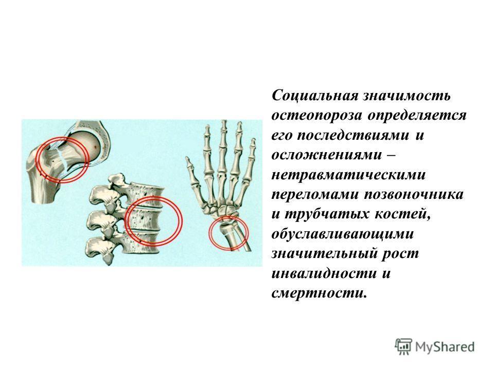 Социальная значимость остеопороза определяется его последствиями и осложнениями – нетравматическими переломами позвоночника и трубчатых костей, обуславливающими значительный рост инвалидности и смертности.