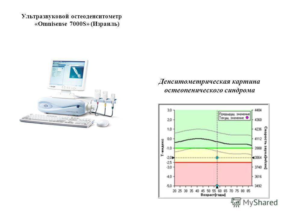 Денситометрическая картина остеопенического синдрома Ультразвуковой остеоденситометр «Omnisense 7000S» (Израиль)