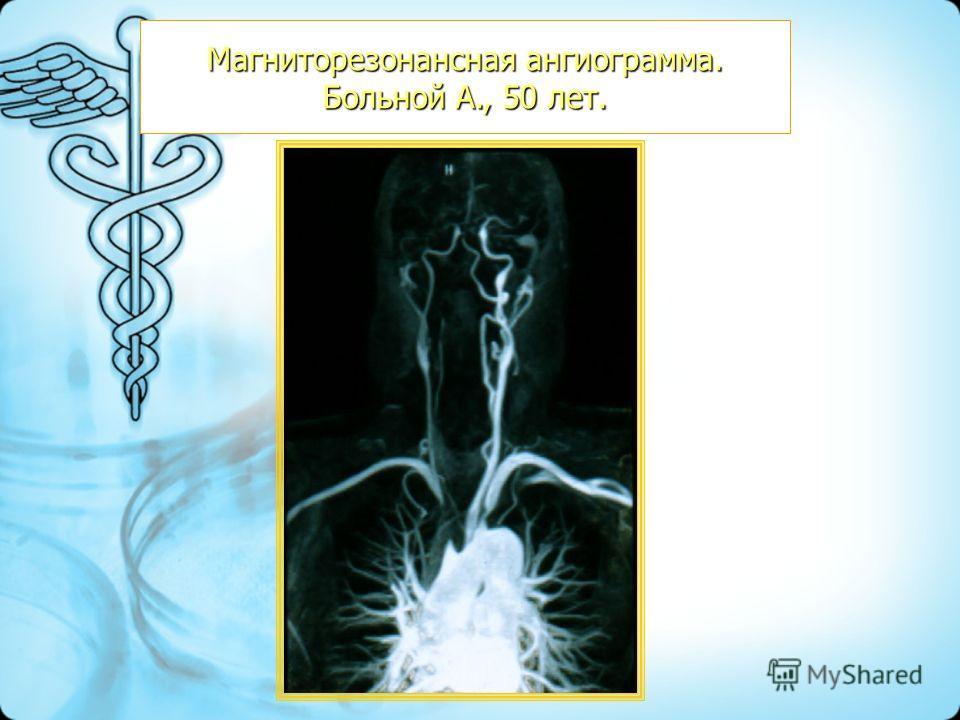 Магниторезонансная ангиограмма. Больной А., 50 лет.